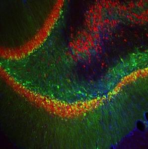 rat hippocampus,